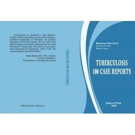 Pachet Tuberculoza
